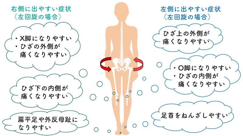 骨盤の回旋の左右差による影響