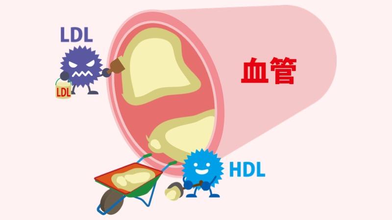 コレステロールと血管